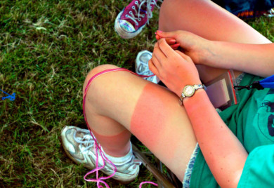 Sun burned legs in Corvallis, Oregon